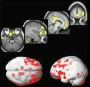 BP-brain